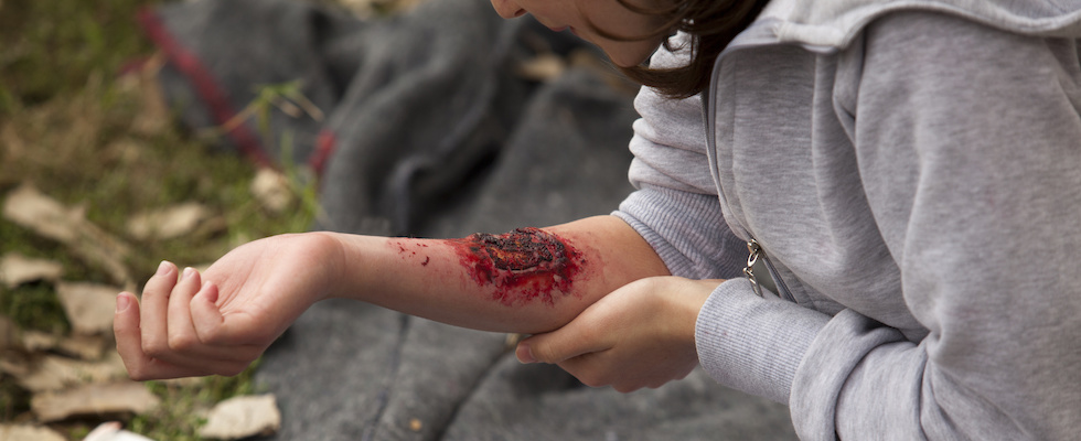 Picture of a young woman with a simulated bloody injury to her arm